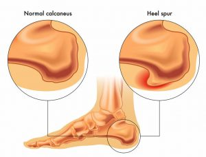 Heel Spur Syndrome