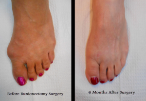 Best Livonia Bunion Surgeons