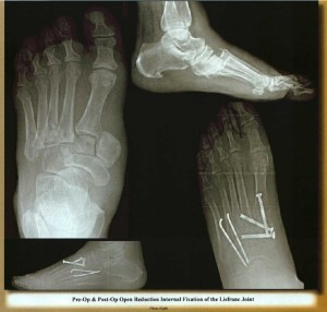 Best Novi Livonia Southfield Foot surgery