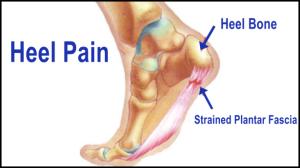 heel pain doctors