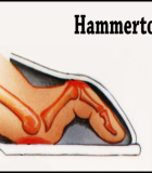 Consider Non-Surgical Treatments for Hammer Toe Correction