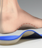 Robotic Orthotic Device could Aid Ankle-Foot Rehabilitation