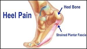 suffering heel pain