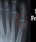 Three Tips to Survive a Foot Stress Fracture