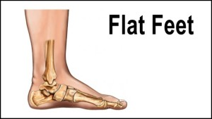 treat flat feet