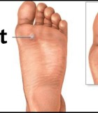 Five Tips to Reduce Risk for Plantar Warts