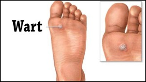 Reduce Risk for Plantar Warts