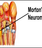 Woman with Morton's Neuroma Participates in First Run