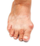 What to Know About Functional Hallux Limitus