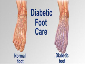 Diabetes foot care vh adult patient