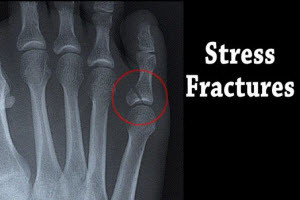 Podiatric Stress Fractures