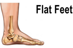 treatment for flat feet