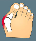 Treat Bunions