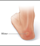 blisters on your feet