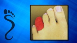 what to know about a broken toe
