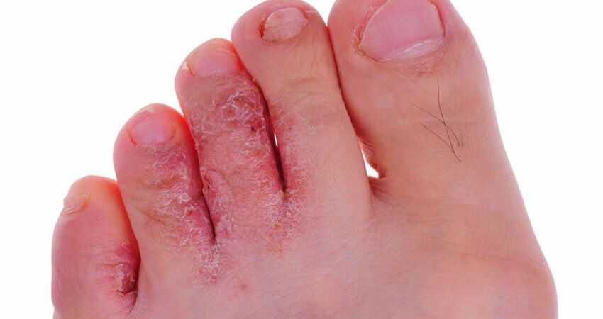Unique Cures for Athletes Foot