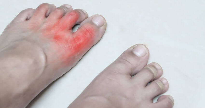 rheumatoid arthritis in the feet