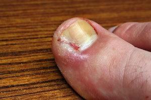 chronic ingrown toenail