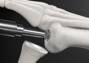 Synthetic Cartilage Implant