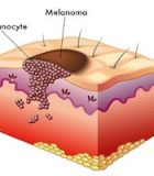 Foot Melanoma: The Hidden Danger