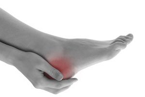 Common Causes of Heel Pain