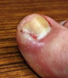 cure an ingrown toenail