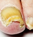 toenail fungus treatments
