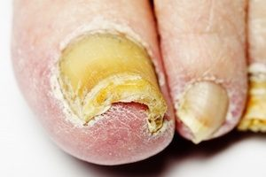 Toenail Fungus Treatments When To See The Doctor