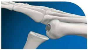 Cartiva Surgery 3