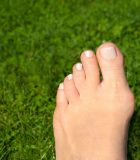 Bunion Surgery or Treatment