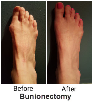 Livonia Best Bunion Surgeons