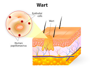 Unique and Promising Treatment for Resistant Plantar Warts