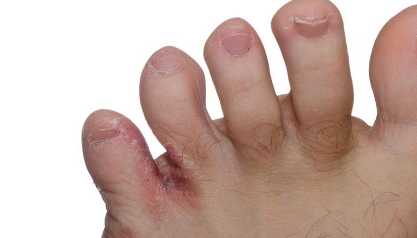 prevent athlete's foot