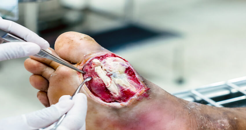 staph infections of the foot