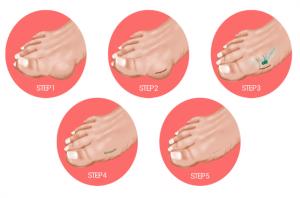 mini bunionectomy steps