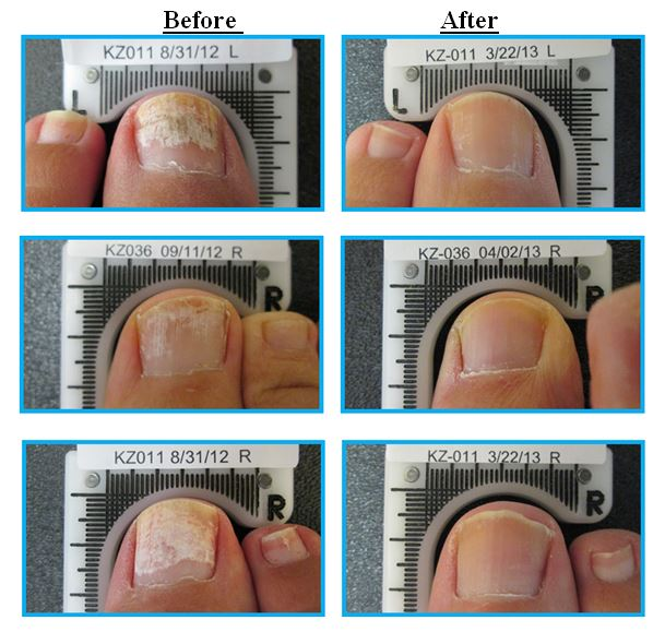 before and after fungal nails