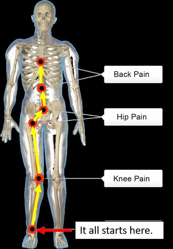 misaligned feet problems